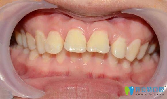 我在北京美莱口腔做矫正前的牙齿图