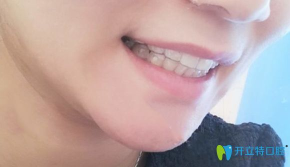 在北京美莱口腔戴隐形牙套18个月的矫正效果图