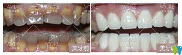 北京美莱口腔牙齿贴面前后对比图