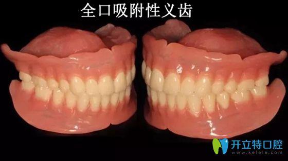 武汉仁爱口腔知识科普:吸附性义齿和普通义齿的区别及利弊