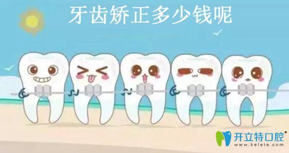 听说深圳港龙医院口腔科固定矫正和隐形矫正价格很亲民哦!