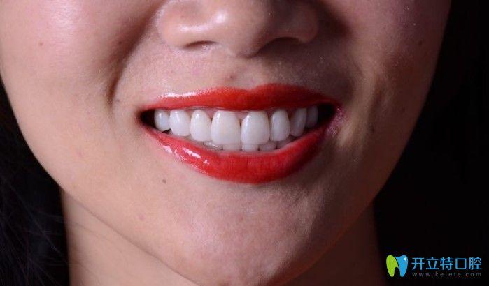 美莱口腔牙齿贴面效果图