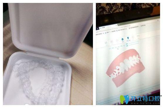 美莱医生用电脑演示的牙齿矫正过程图