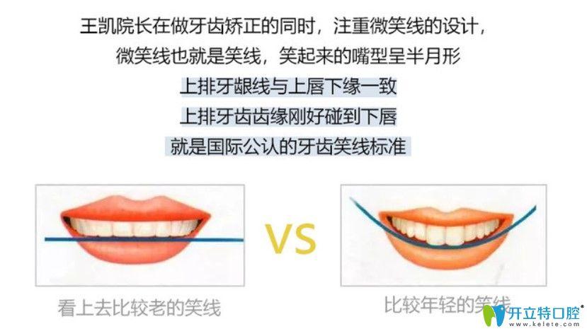 牙齿矫正也会改变脸型