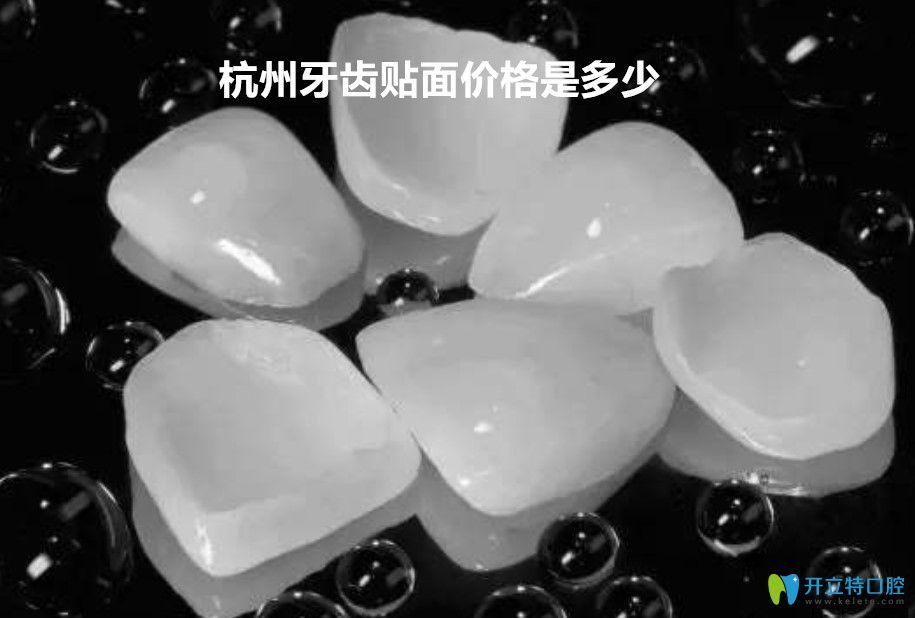 戳这里了解杭州瓷贴面价格表和杭州超薄牙贴面哪里做的好