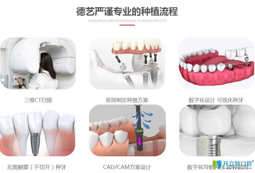 清远德艺口腔数字化种植牙流程
