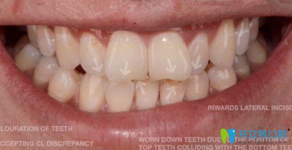 晒北京美莱戴金属牙套矫正前后对比照,并说下摘牙套的感觉