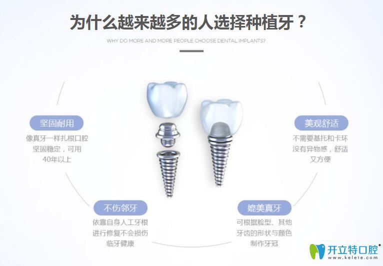 清远德艺口腔数字化种植牙适应人群