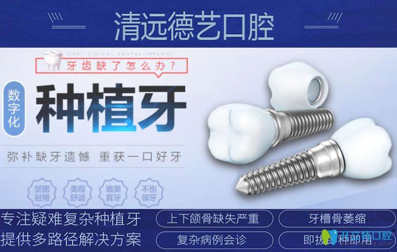 谁说种牙要等半年?清远德艺口腔数字化种植牙技术即种即用