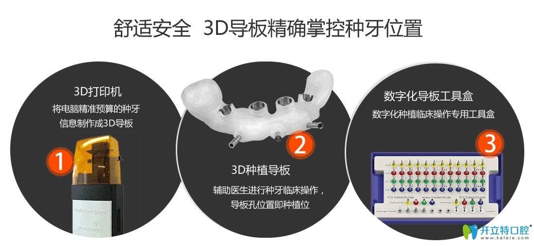 3D导板种植牙技术