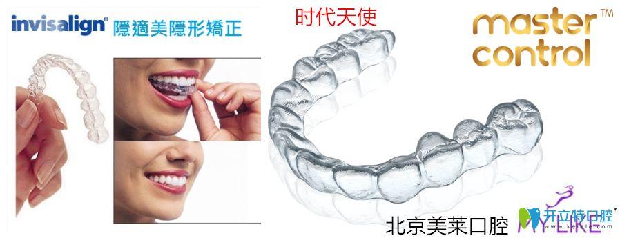 北京美莱口腔隐形矫正图示