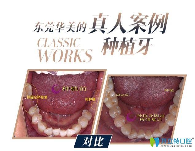 多颗牙缺失顾客在华美口腔做的种植牙案例
