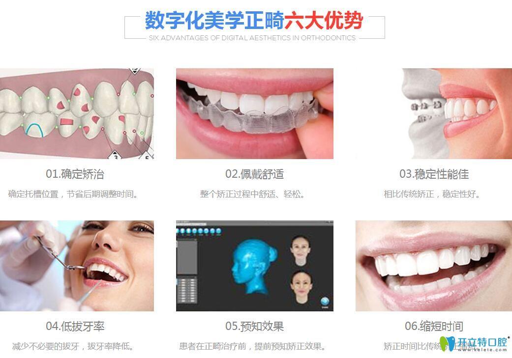 清远德艺口腔数字化隐形牙齿矫正6大优势
