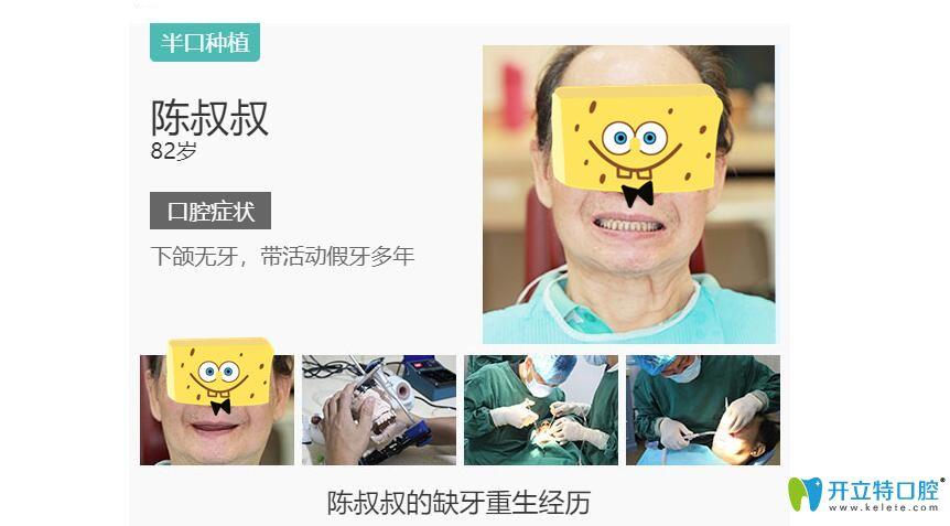 陈叔叔在长沙好大夫口腔做种植牙图示