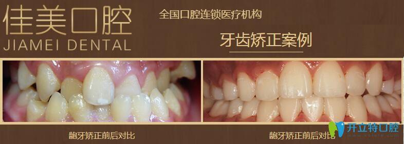 北京佳美口腔龅牙矫正案例图