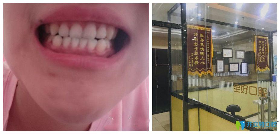 大家能看出我的大门牙是补过的