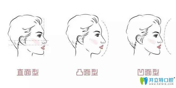 看到北京美莱口腔时代天使矫正器和隐适美牙套价格并不贵
