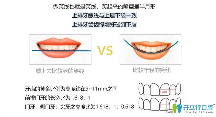 DSD美学微笑曲线设计图