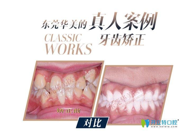 牙齿拥挤不齐的小姐姐在东莞华美口腔做完矫正前后对比图