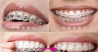 记录在深圳南山正规牙科医院好佰年口腔做的牙齿矫正体验