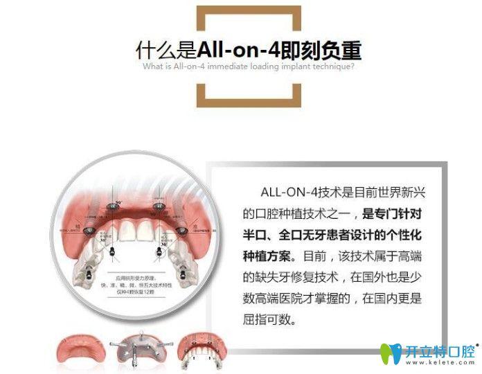 牙博士all-on-4/6即刻负重种植牙介绍