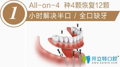 清远德艺口腔牙槽骨萎缩半全口种植牙