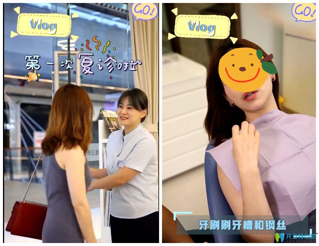 在上海维乐口腔做舌侧矫正后来复查