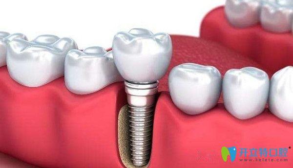 种植牙微创还是传统好?听东莞中大口腔说两者区别有哪些
