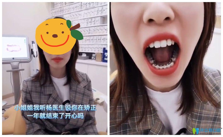高颜值小姐姐也选择杨国平做了舌侧牙齿矫正