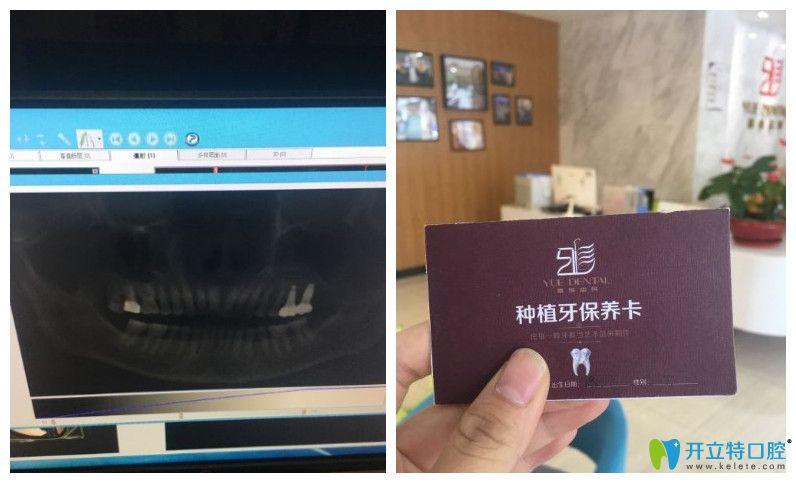 在雅悦种植牙顾客复查片子以及种牙保养卡