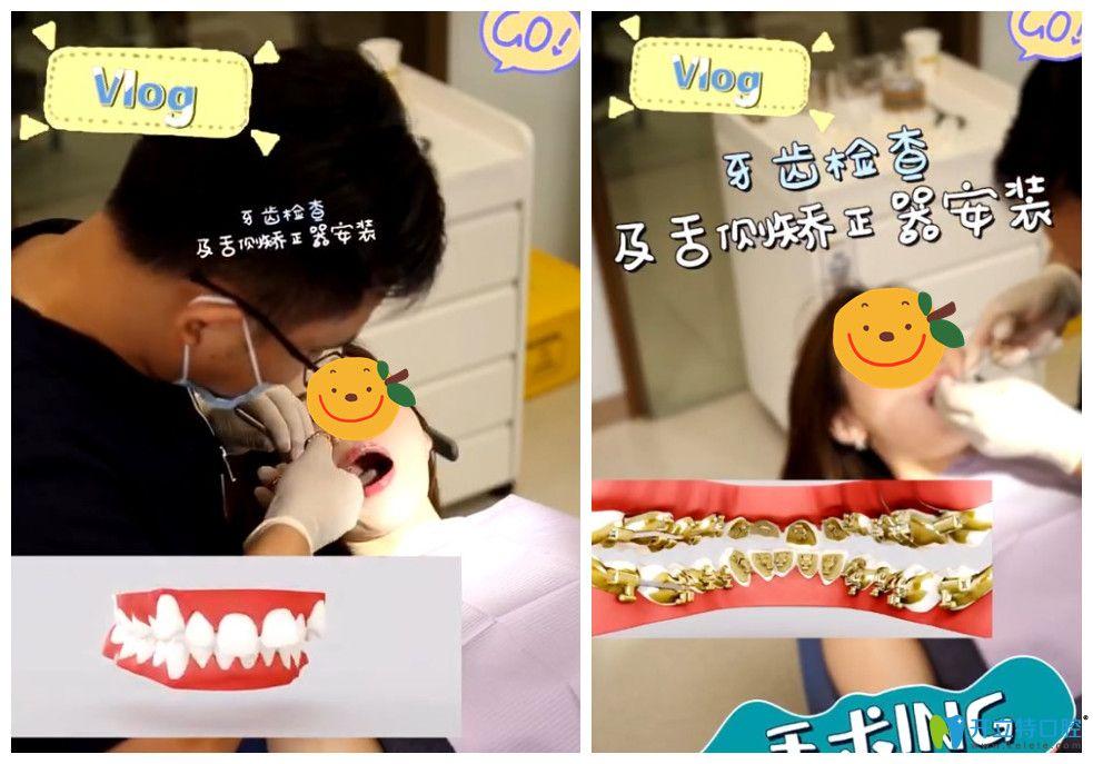 杨国平医生为顾客安装舌侧牙套