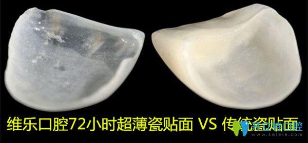 做16颗牙齿贴面要多久?别错过上海维乐口腔72小时美学贴面