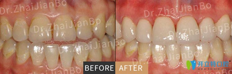 超薄瓷贴面美牙前后对比图片