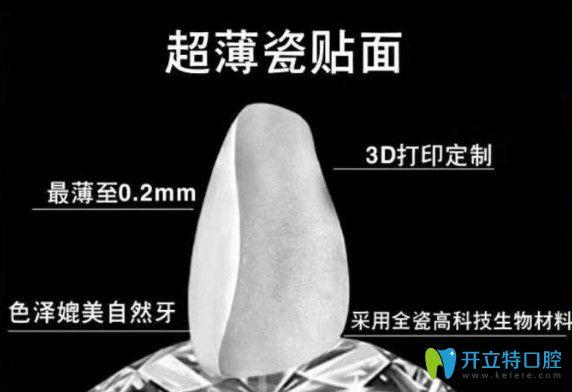 北京瑞冠口腔全瓷牙贴面价格