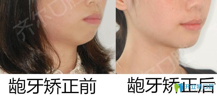 杭州齐尔口腔龅牙矫正案例