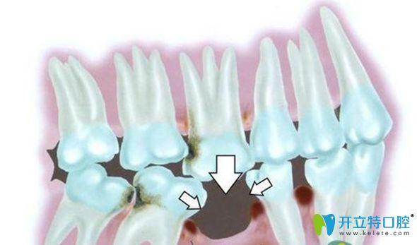 欧诺口腔科普牙齿缺失的危害以及做种植牙的必要