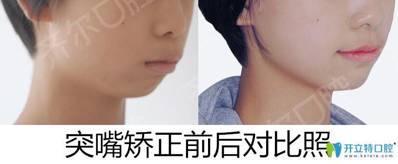 杭州齐尔口腔龅牙矫正前后对比照