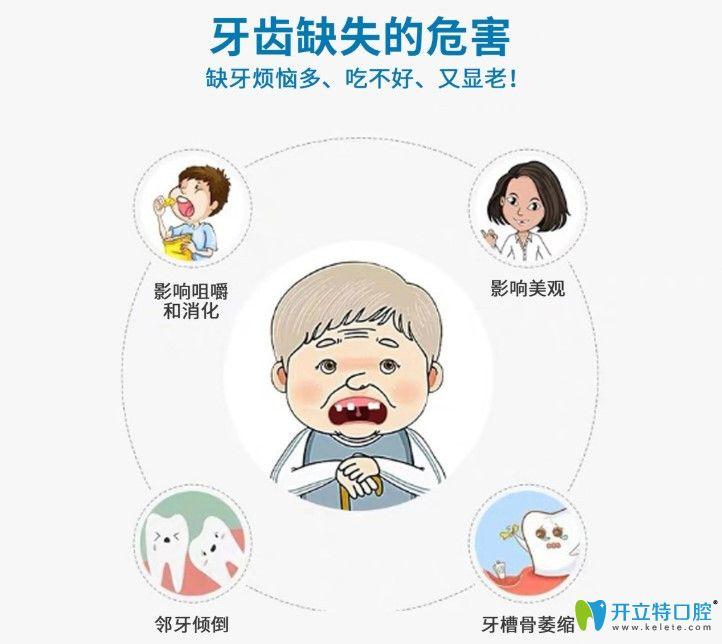 上海茂菊口腔医生解说缺牙危害