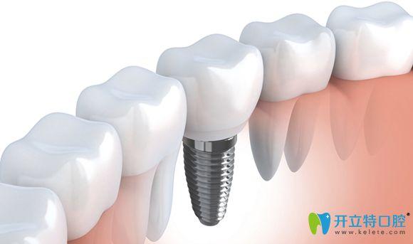 种植牙齿后的正常牙列