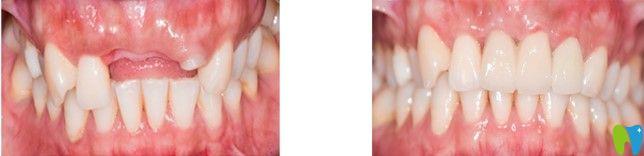 在深圳八卦岭和贝口腔做即刻种植牙后来说感受及选择原因