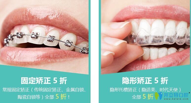 杭州维恩口腔隐形牙齿矫正价格