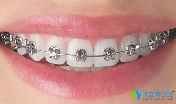 深圳润泽瑞尼丝口腔的牙齿正畸特色介绍