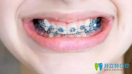 陈薇医生谈儿童牙齿矫正的重要性