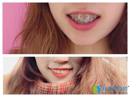 在曙光口腔牙齿矫正前后对比图