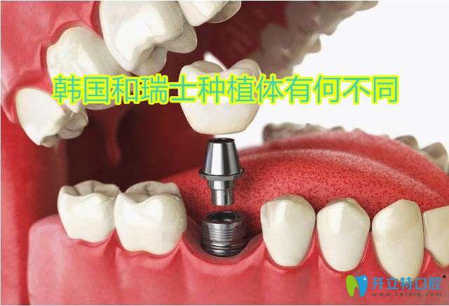 韩国和瑞士种植体有何不同,想要种牙更快一些看看它们区别