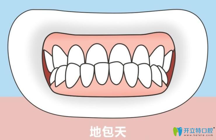 牙齿地包天在重庆茁悦口腔做隐适美矫正后脸型也有变化哦