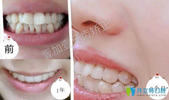 公开合肥壹加壹口腔陶瓷托槽和隐适美隐形牙齿矫正案例图