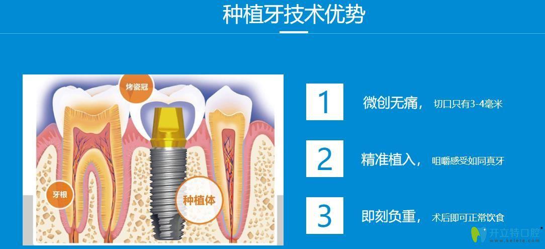 种植牙技术优势