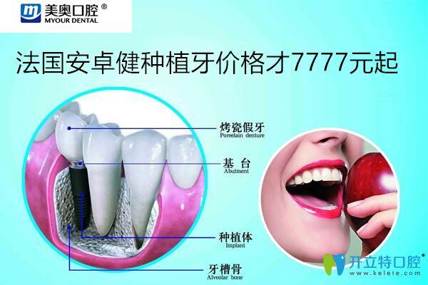 上海美奥口腔种植牙价格图示