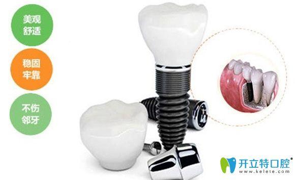 一颗种植牙价格包含有种植体和基台以及牙冠